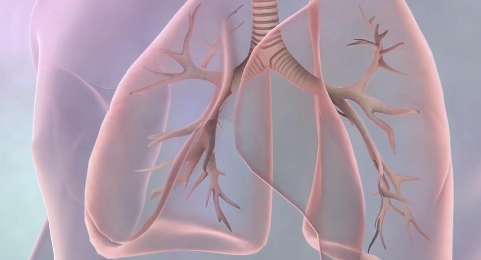 Semnele şi simptomele ascunse ale cancerului pulmonar